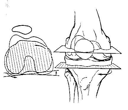 Knee Version