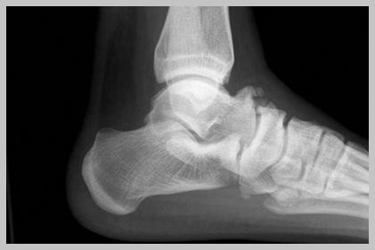 ankle dorsiflexion